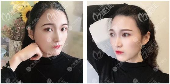 找广州曙光杨晓英医生做完双眼皮有一段时间了,今天来分享恢复过程