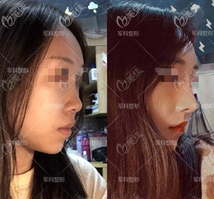 重庆军科医院鼻综合案例