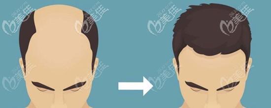 植发手术的发展史