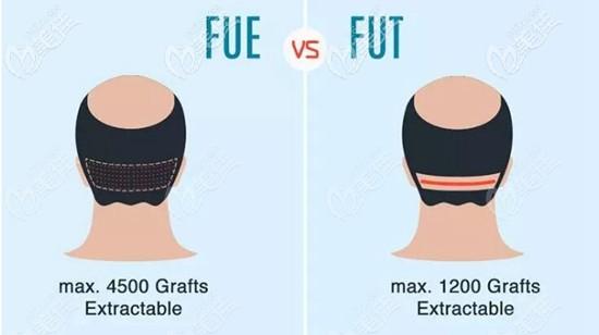 FUE和FUT植发技术效果对比
