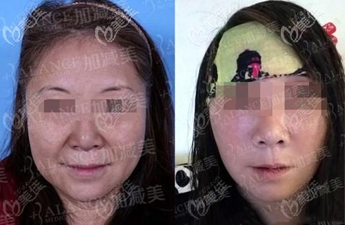 穆宝安V美减龄面部提升案例