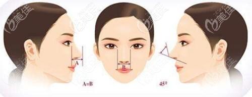 隆鼻手术的美学