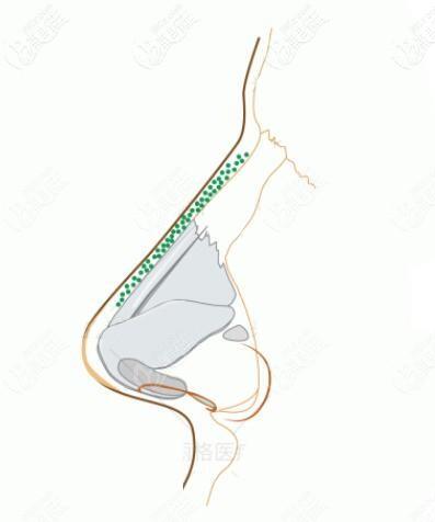 骨膜贴片和骨粉成分相似