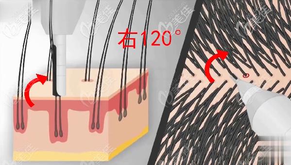 不剃发植发采用左180°右120°双向旋转的方式提取毛囊