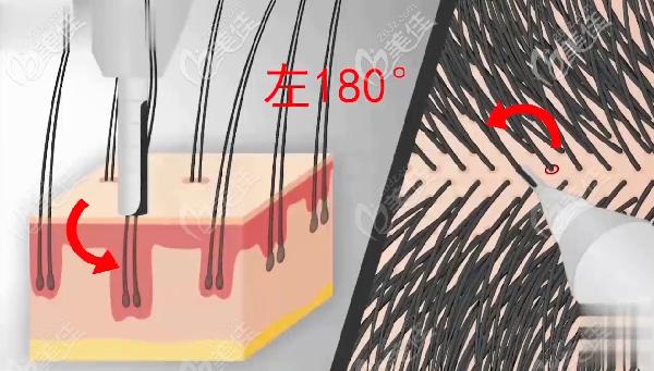 新生NoCut不剃发植发技术采用的是环钻
