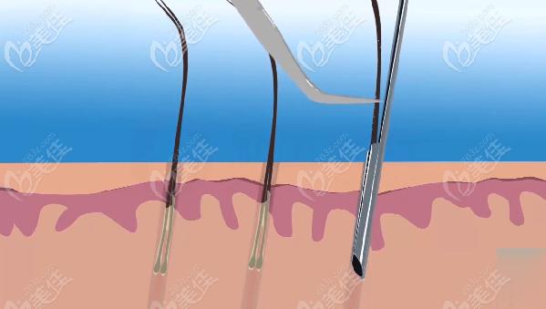 新生Nocut不剃发植发采用新微针种植避免二次损伤