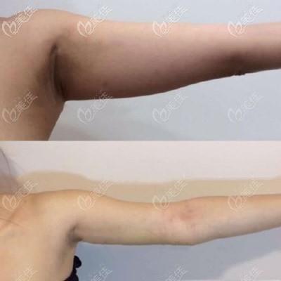 深圳阳光整形医院上臂抽脂案例