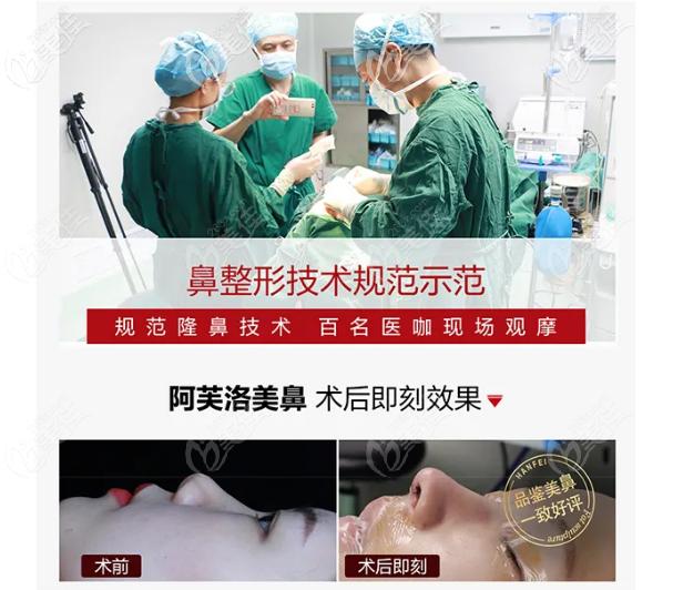 广州韩妃阿芙洛美鼻手术现场直播