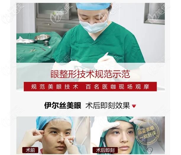 广东韩妃李光琴双眼皮手术过程图