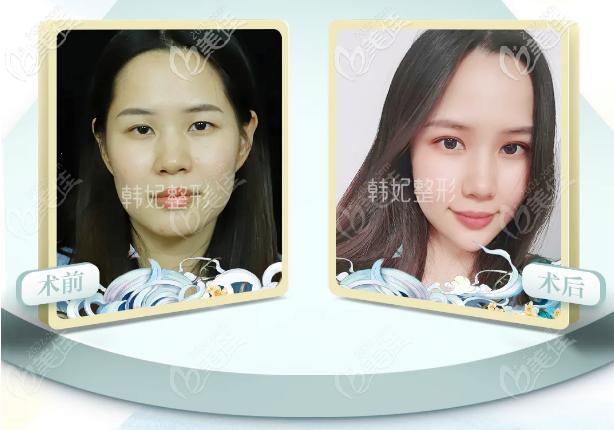 广州韩妃李光琴双眼皮案例效果图