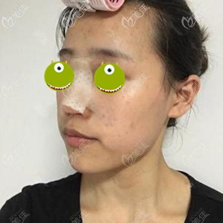 在郑大一附院做鼻修复一周后
