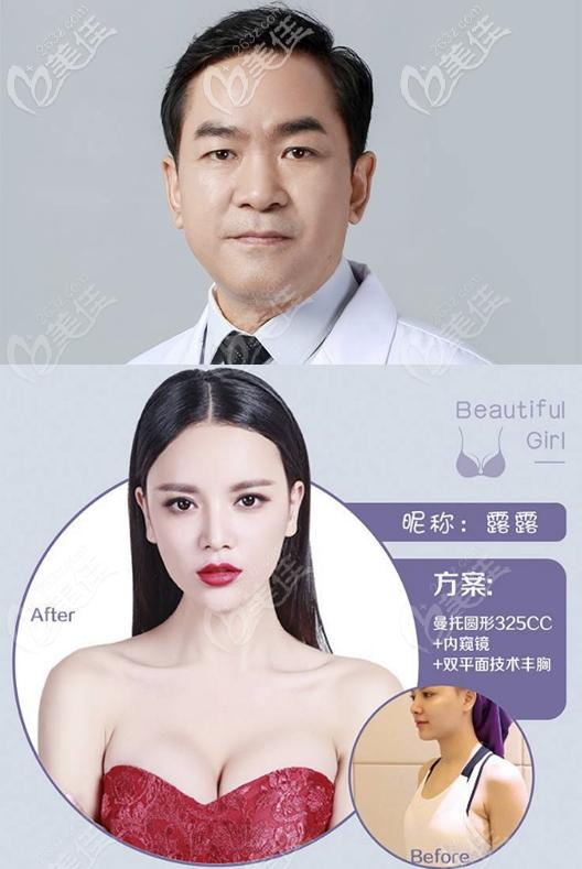 南宁华美赵广生假体隆胸案例