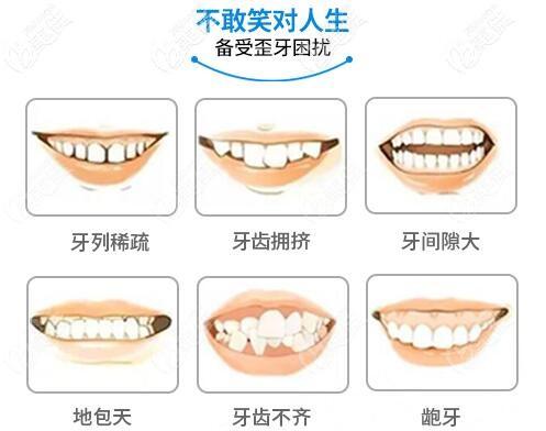 武汉虎泉口腔牙齿矫正适应症