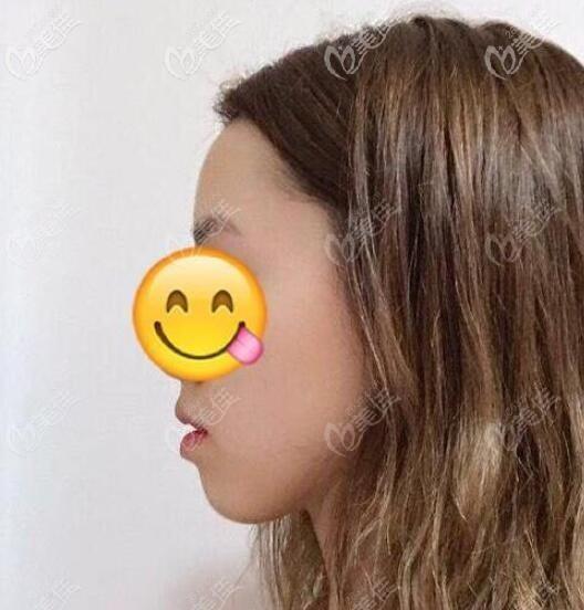 龅牙矫正前从侧脸上看下巴后缩特别厉害