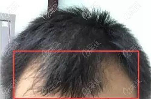男士m型发际线脱发