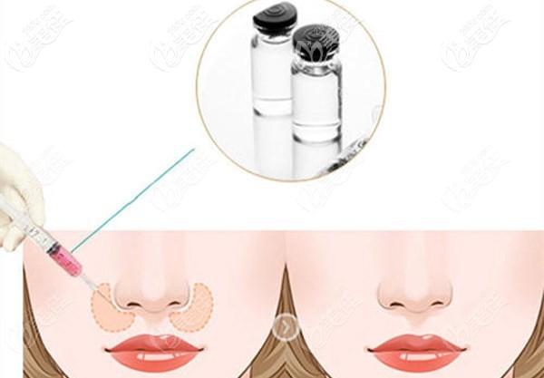 注射法改善鼻基底凹陷导致的法令纹