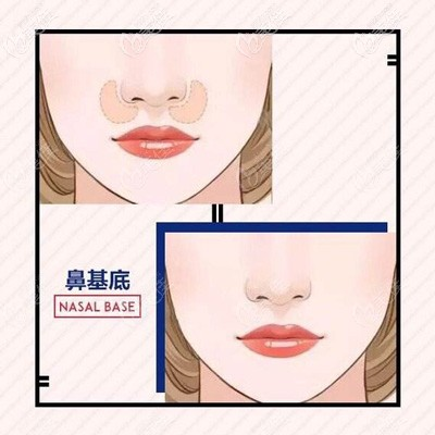 鼻基底凹陷造成的少女型法令纹