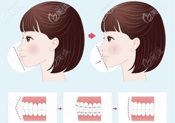 骨性龅牙做正畸后的侧面效果