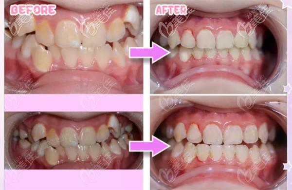 曹同学牙齿矫正前后对比