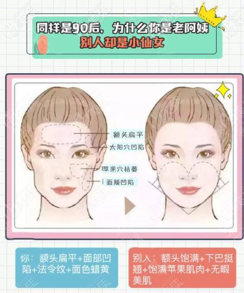 面部脂肪填充原因