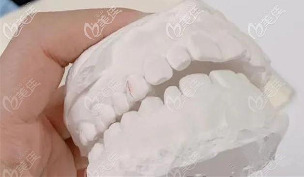 矫正前取得牙模,只是轻微的牙列不齐