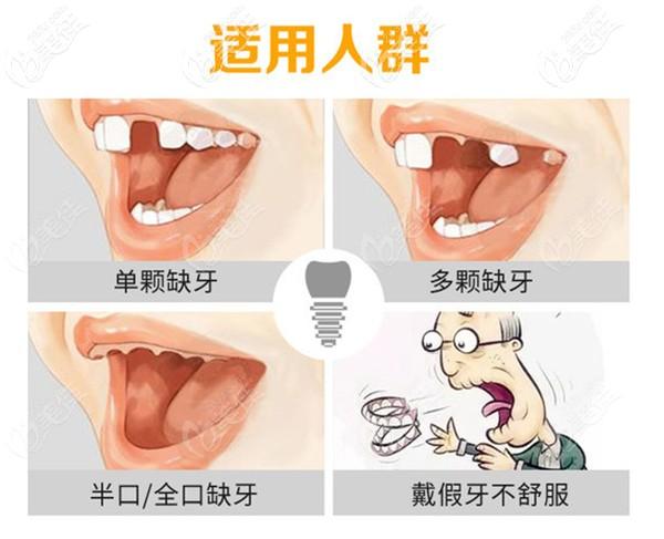 韩国登腾种植牙适应人群