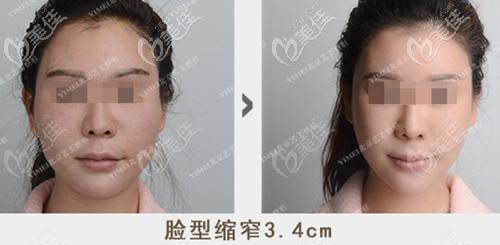 北京艺美王东一针降颧骨手术案例