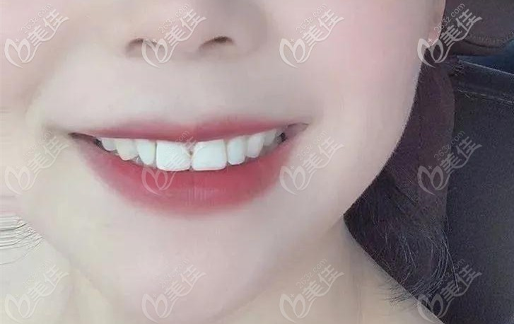门牙中间的黑三角是矫正前就有的哦