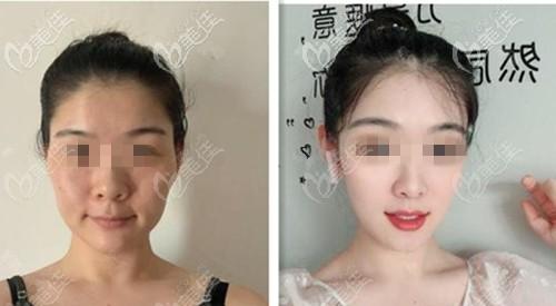 北京美莱王志强不开刀降颧骨案例