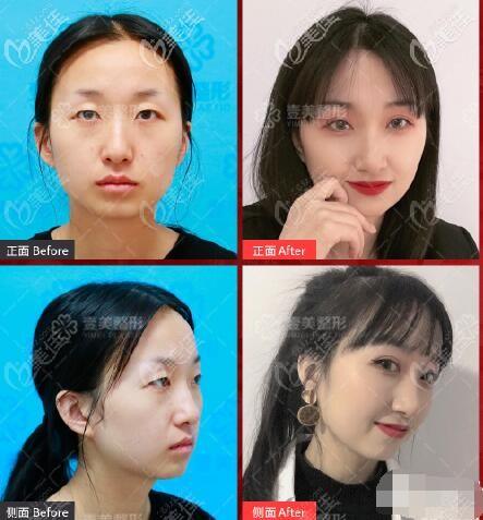 朱建莹医生韩范单眼皮术前术后对比