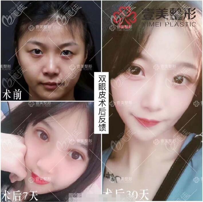 杨文敬医生隐适弧美眼术术后30天效果图