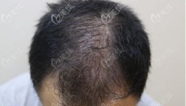 头顶头发稀疏脱落的现象