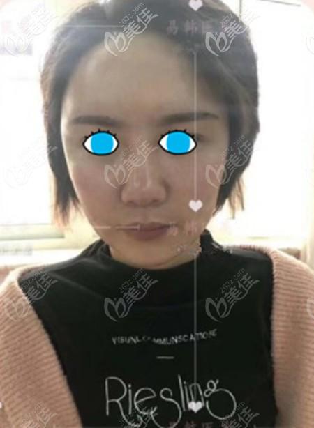 信阳东方艺整形美容医院李英春术后照片1