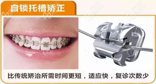 邛崃新桥口腔金属自锁矫正器