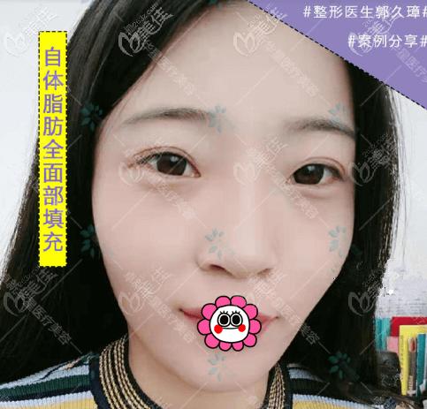 关于郭久璋医生给我做的面部脂肪填充效果,个人觉得还是挺可观的