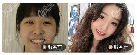 北京壹加壹口腔龅牙矫正案例