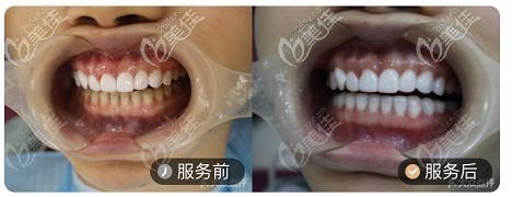 北京壹加壹牙科超薄瓷贴面案例对比图