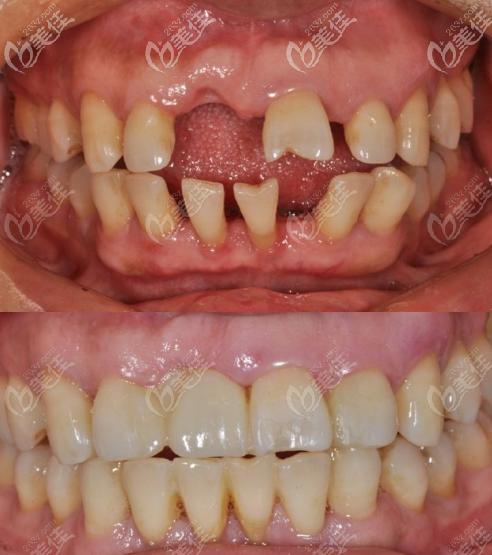 咸阳美好齿科牙周炎门牙松动正畸案例