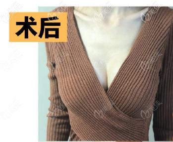 要说在韩国WOOA整形外科做的375CC魔滴假体隆胸第30天效果,比我预料的要好