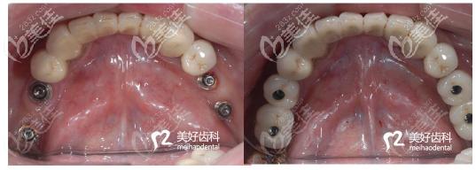 咸阳美好齿科种植牙案例