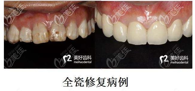 咸阳美好齿科全瓷牙修复案例