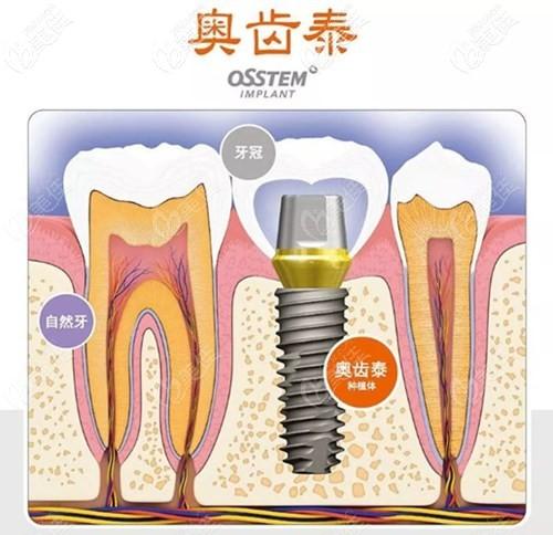 21岁计划到大连牙元素做韩国奥齿泰种植牙得准备多少钱?