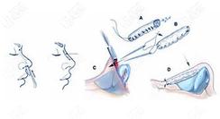 靳玉彪医生做鼻子手术示意图