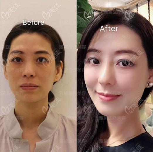 惠阳雅黛医疗整形王昌松全脸脂肪填充案例