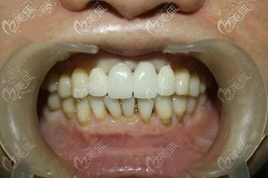 门牙缺失四颗种植案例图片