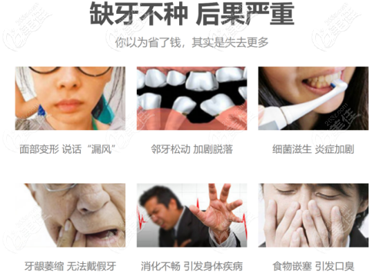 刘方明医生告诉你缺牙不种的后果