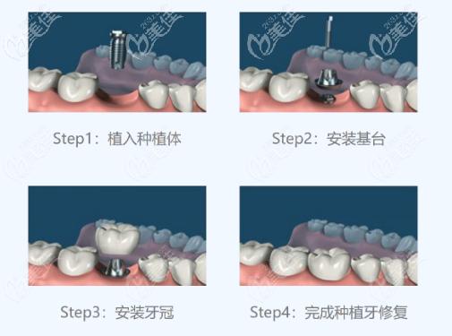 种植牙的基本流程