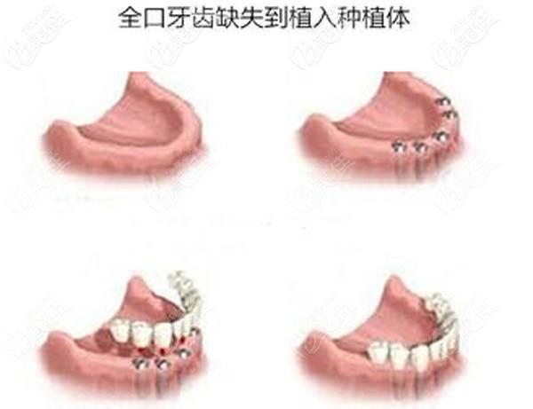 全口缺失种植牙的示意图
