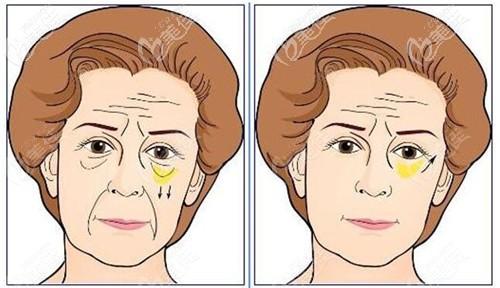 下拉皮手术能去泪沟和法令纹吗