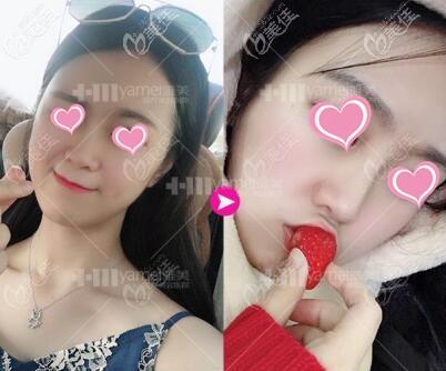 长沙雅美医疗美容医院姚江华术前照片1